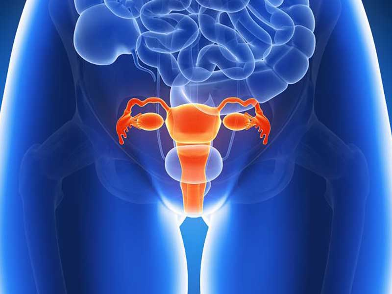 Endometrioza i neplodnost